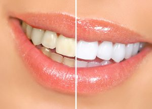 teeth-whitening-toronto