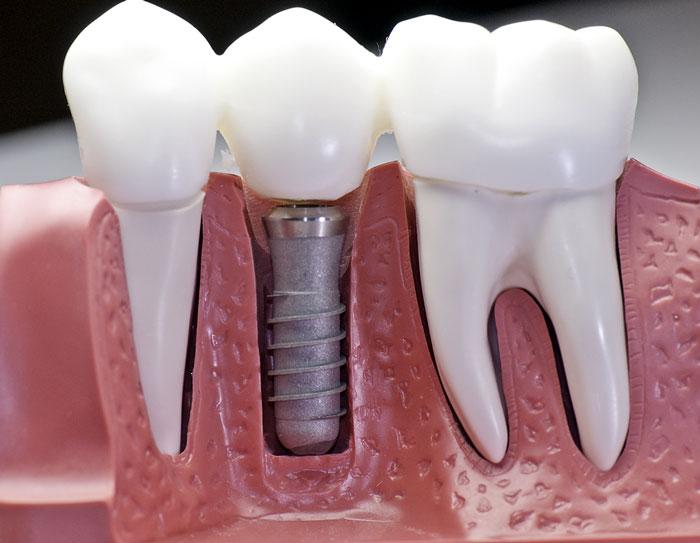 Dental Implants In Rockville